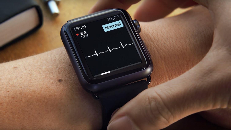 Apple Watch AliveCor