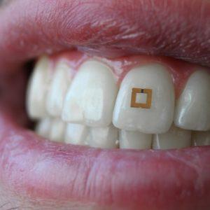 ToothSensor