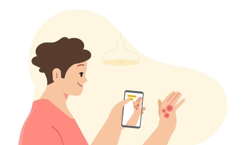 Google Asystent dermatologa AI